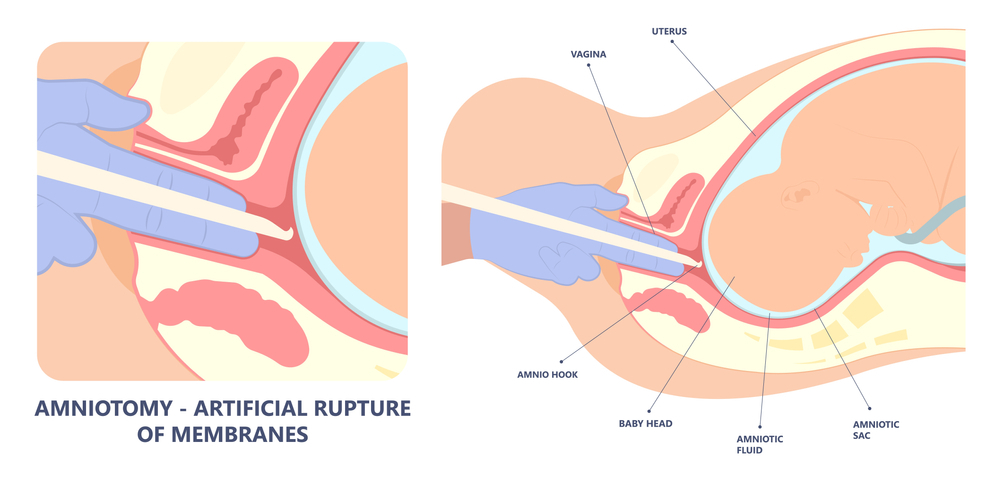 Amniotomy - artificial rupture of membrane